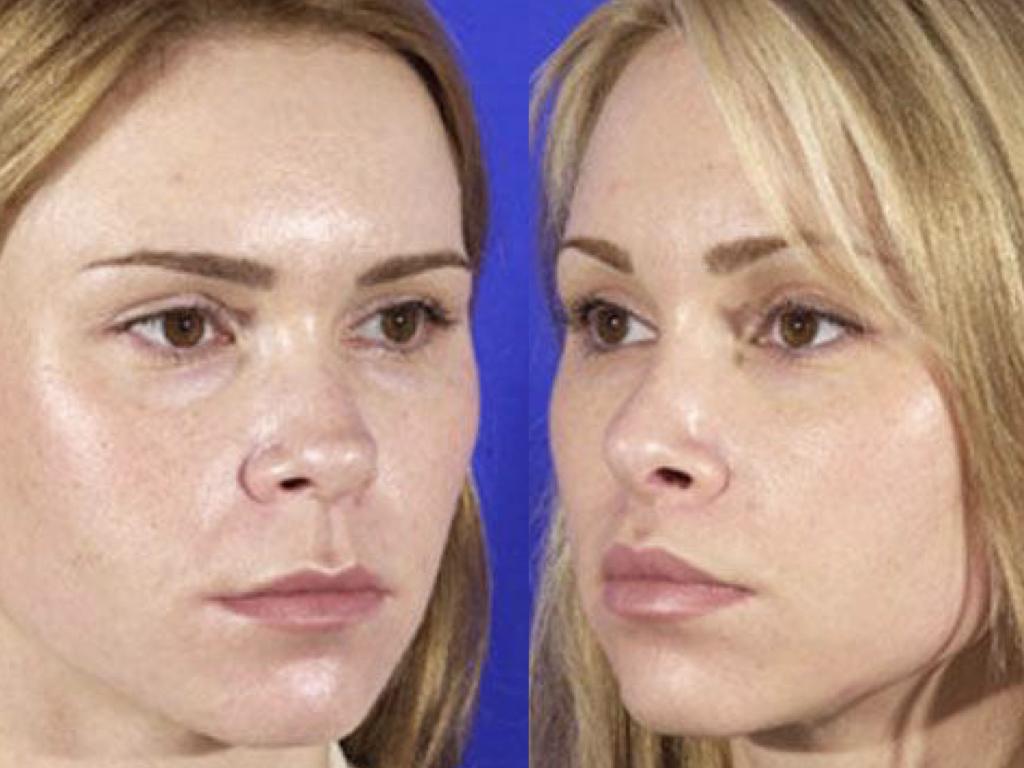 resultado Liplift y Queiloplastia de Aumento de Labios.