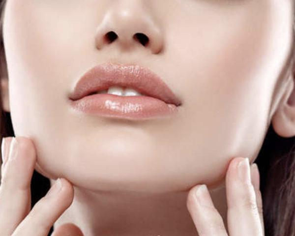 Queiloplastia o cirugía de labios