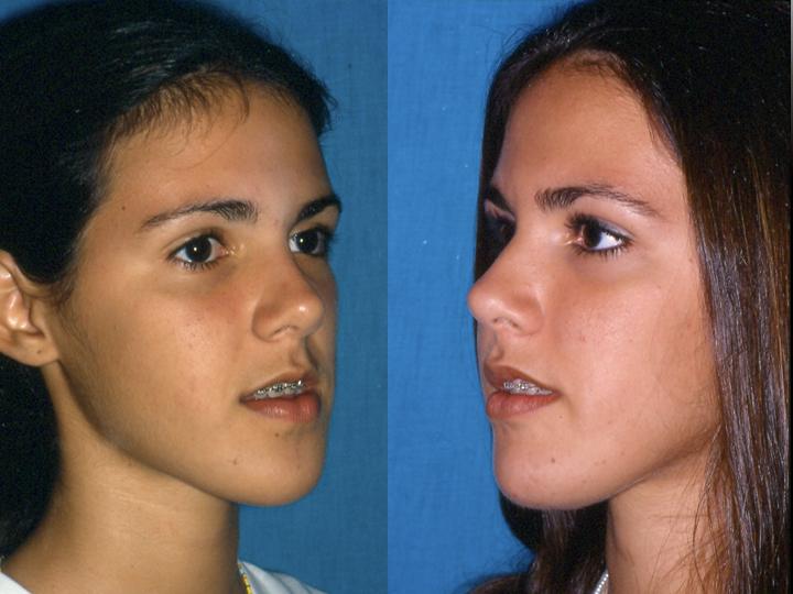 antes y después cirugía ortognática