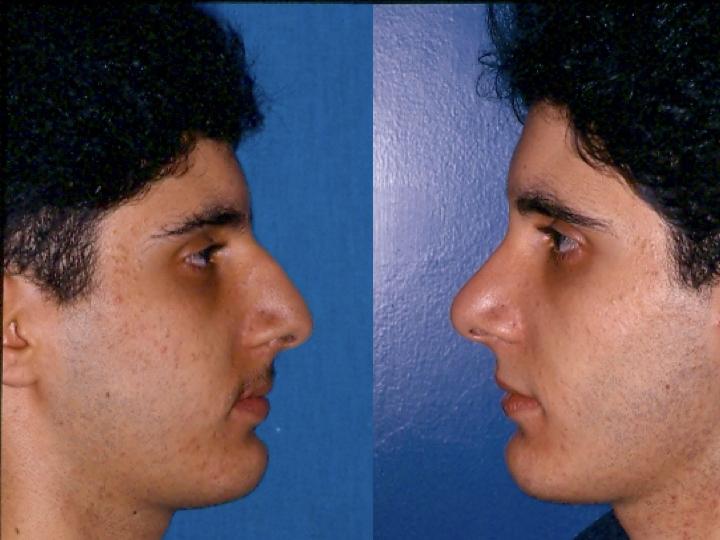 antes y después rinoplastia hombre