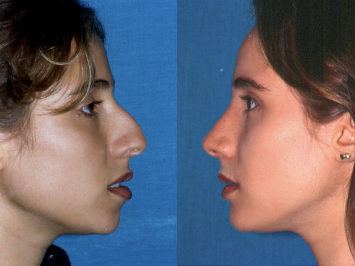 Antes y después cirugía de Rinoseptoplastia