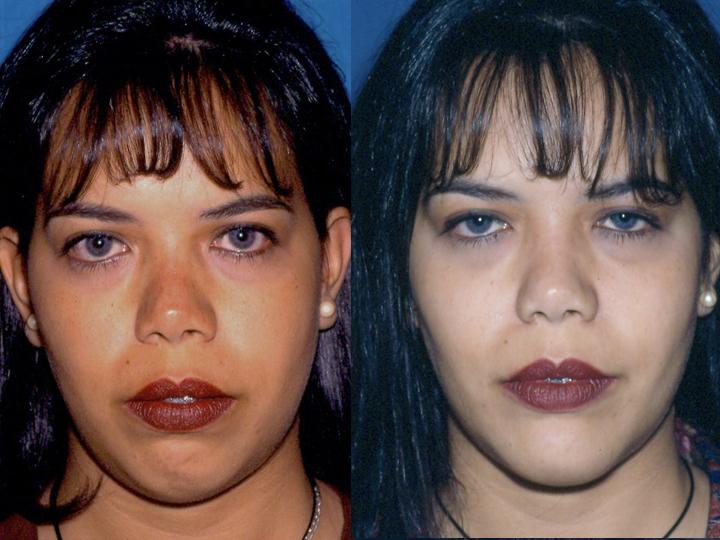 antes y después frontal cirugía de mentón