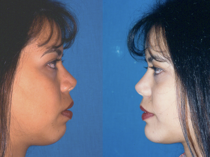 antes y depués mentoplastia