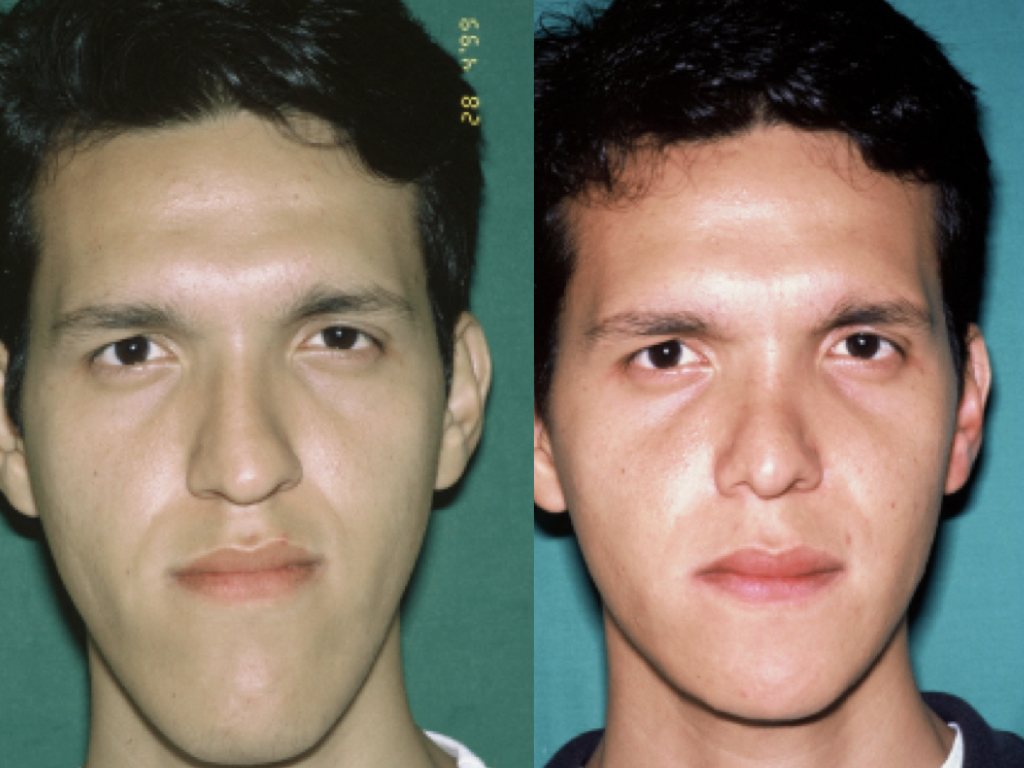 antes y después cirugía de mentón
