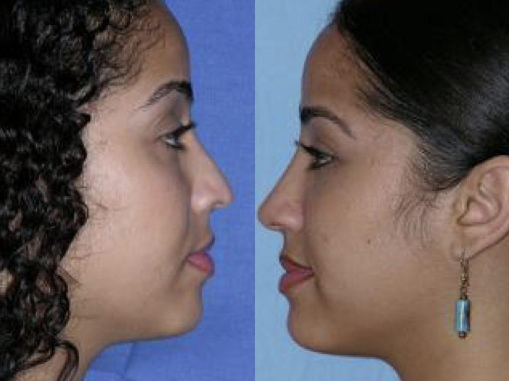 antes y después de cirugía de nariz