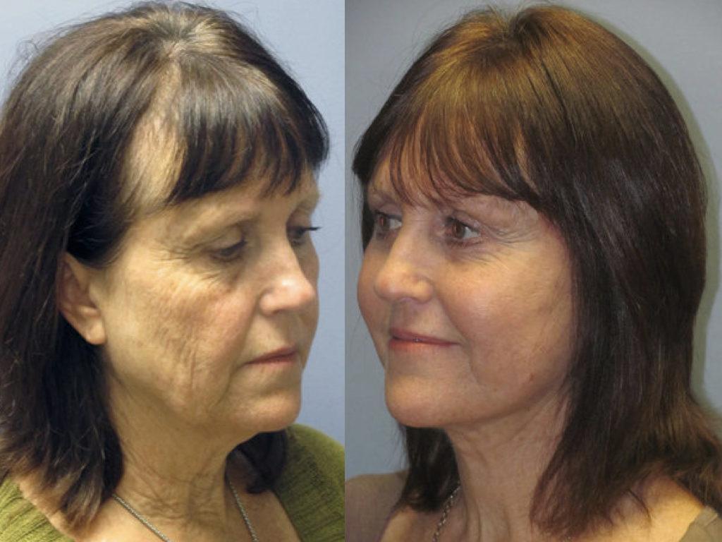 antes y después de peeling químico y lifting facial