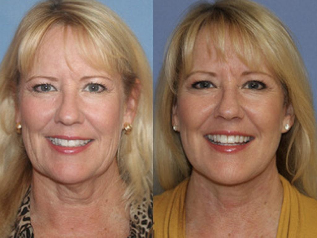 antes y después de lifting, mentoplastia y dermoabrasión