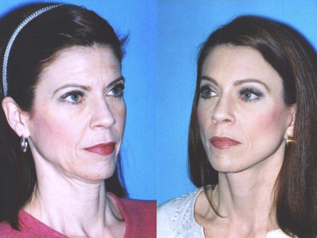 antes y después de rejuvenecimiento facial con lifting y blefaroplastia