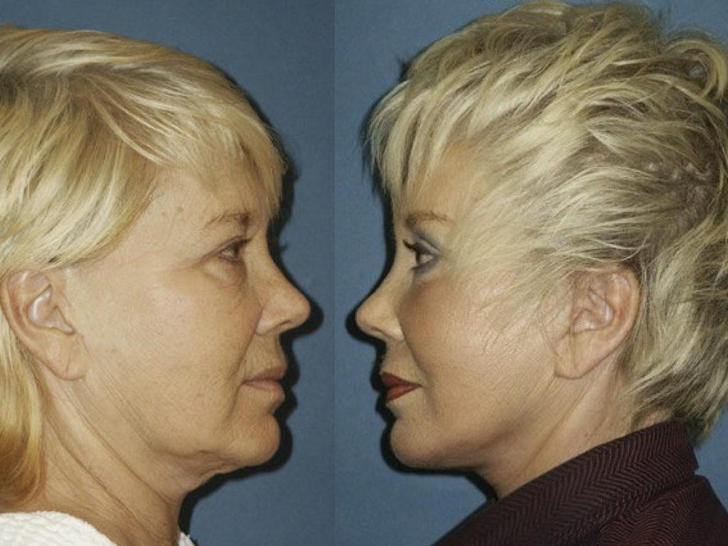 antes y despuées de lifting, peeling y blefaroplastia