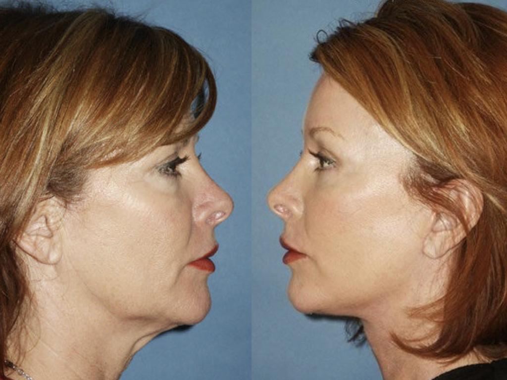 antes y despues lifting, blefaroplastia y peeling
