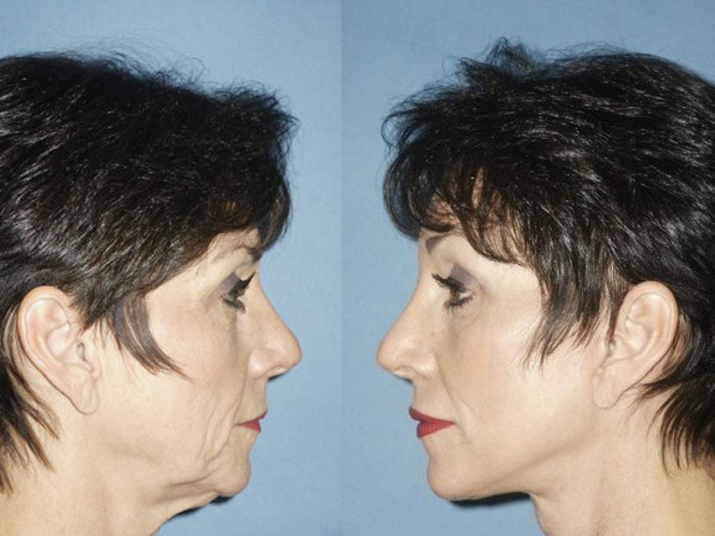 resultados lifting facial, blefaroplastia y peeling