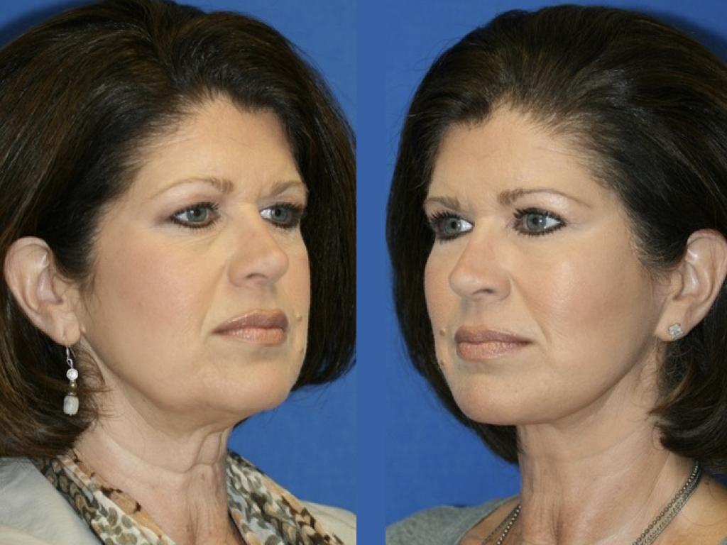 antes y después blefaroplastia y lifting