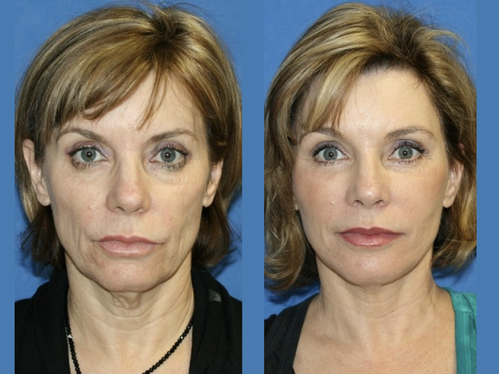 antes y después frontal de lifting facial