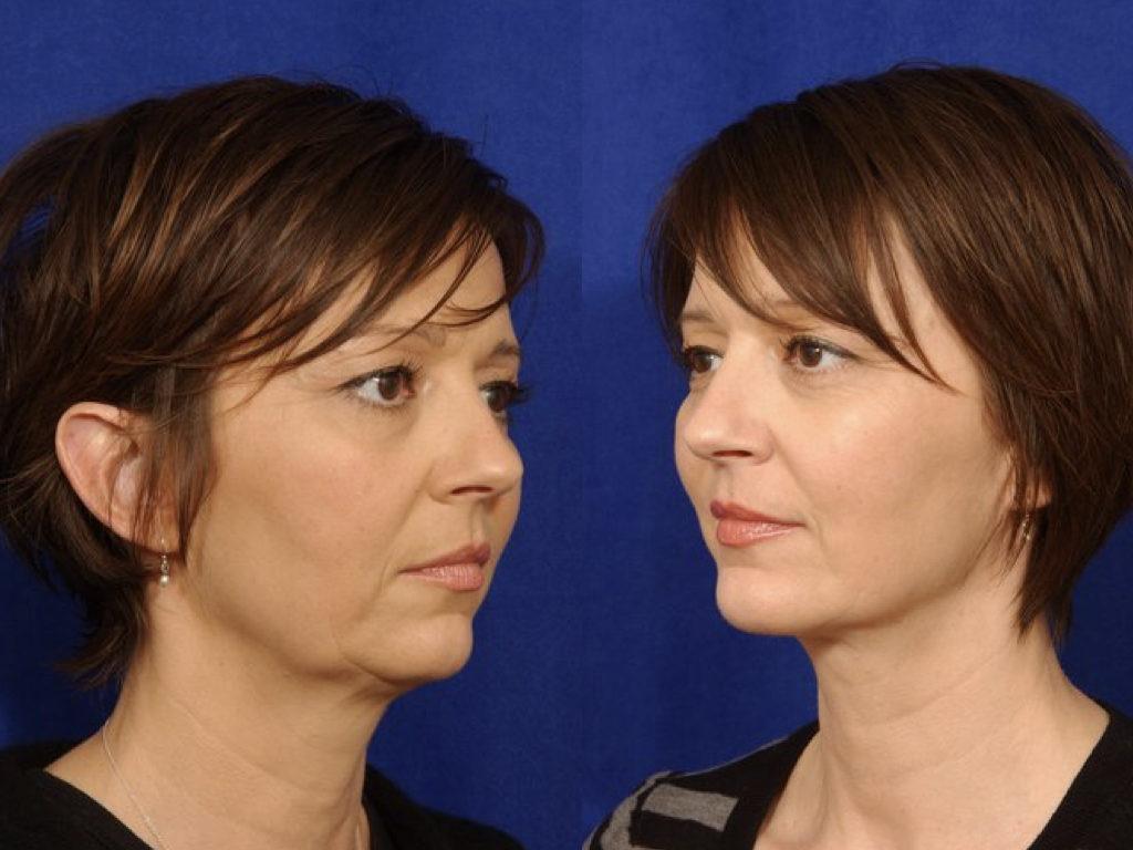 antes y depués lifting facial y liposucción de cuello
