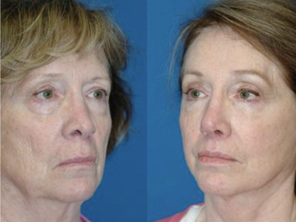 antes y después lifting de cuello y cara