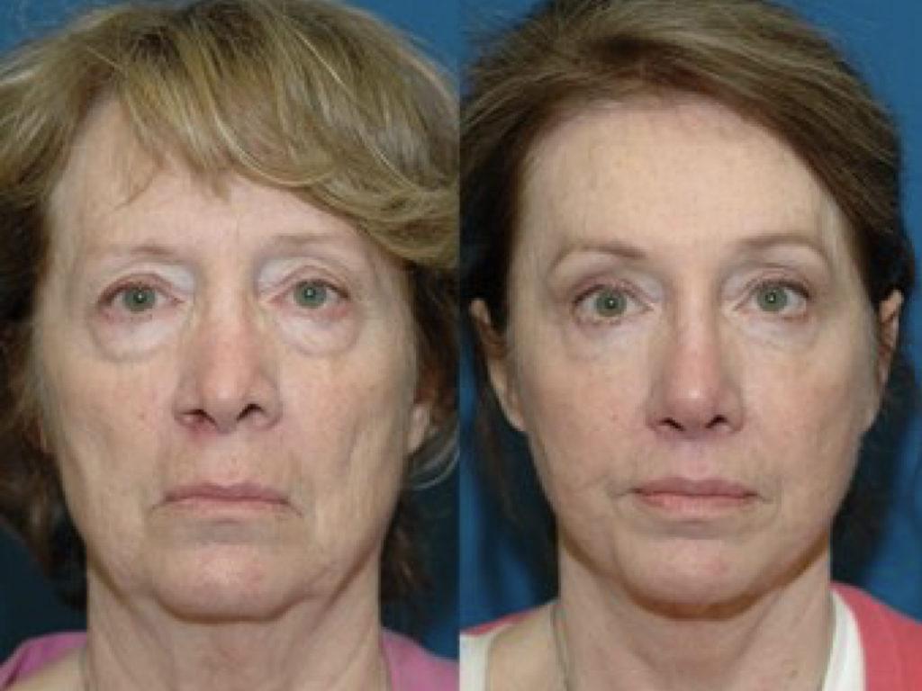 resultados de lifting de cuello y cara