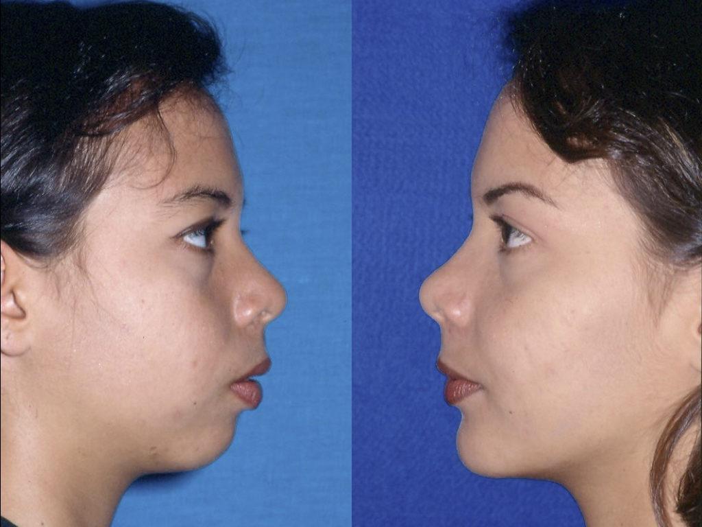 mentoplastia y ortognática resultado