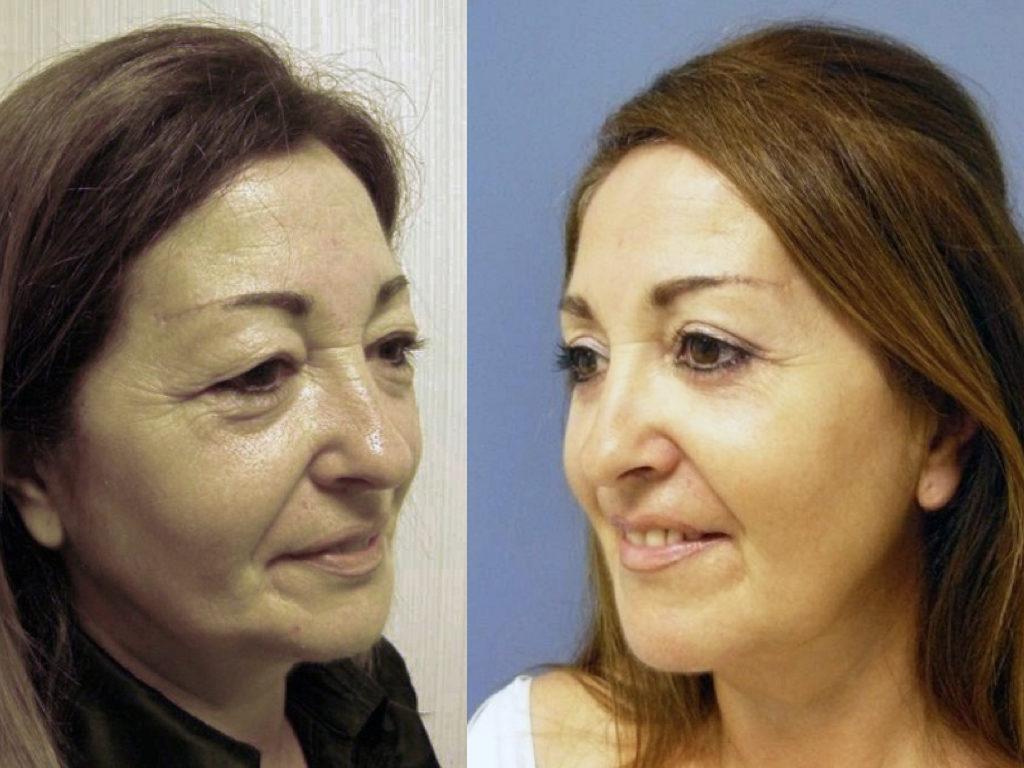 rejuvenecimiento facial resultado