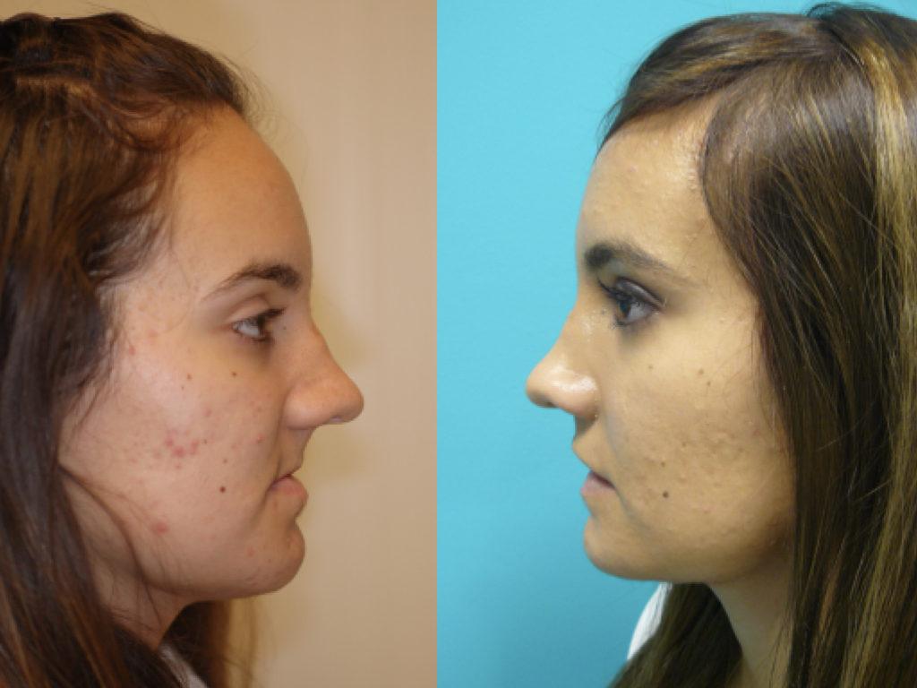 antes y después cirugía reconstructiva facial
