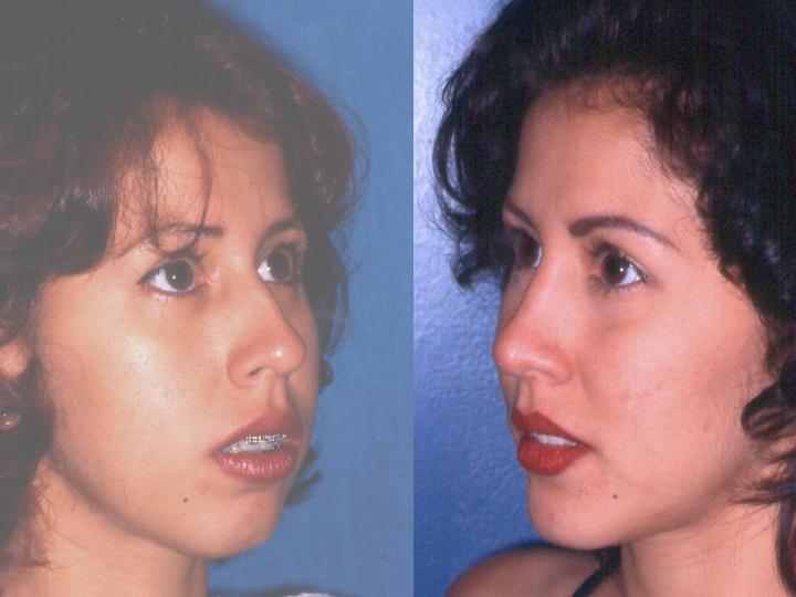 cirugía de nariz y mentón resultados