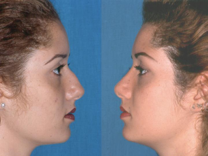 rinoplastia antes y después femenino