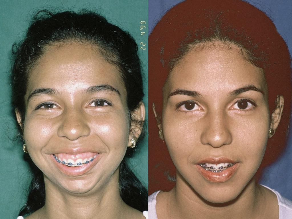 cirugía ortognática antes y depués femenino