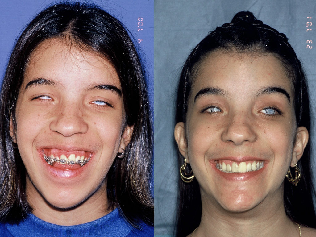 cirugía ortognática antes y después