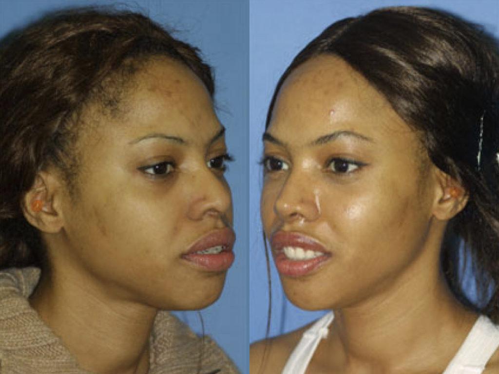 antes y después cirugía facial