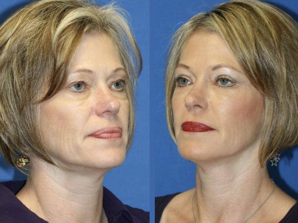 rejuvenecimiento facial, antes y después