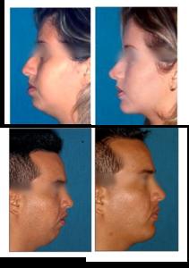 mentonplastia3.jpg