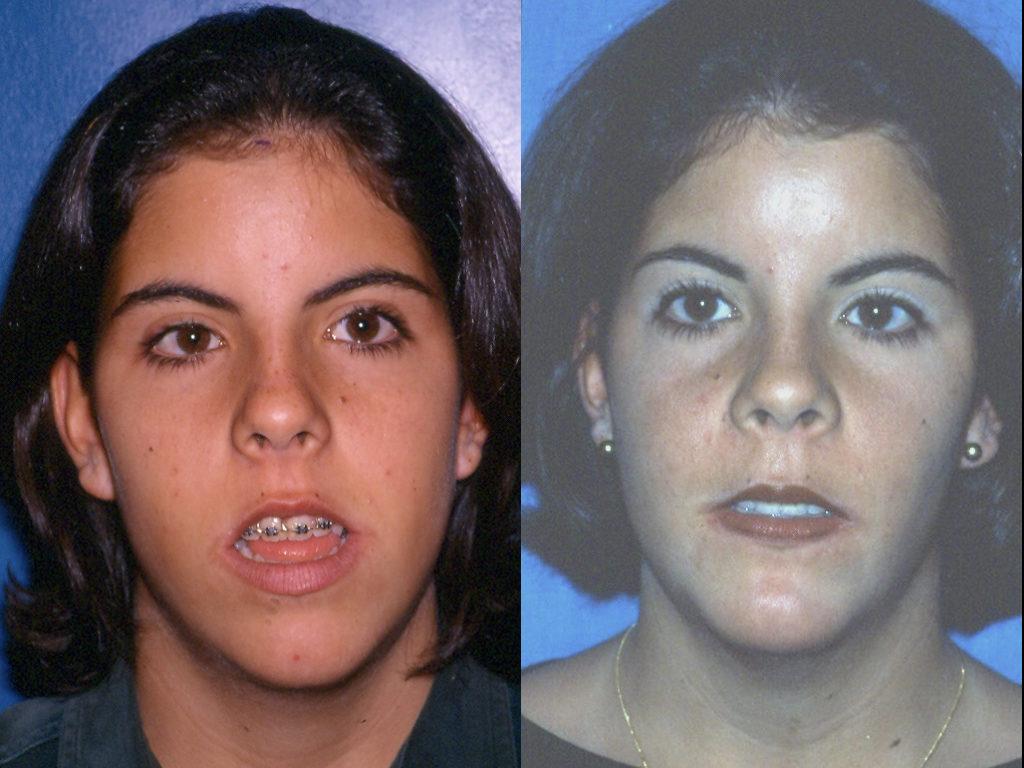 antes y después de intervención ortognática