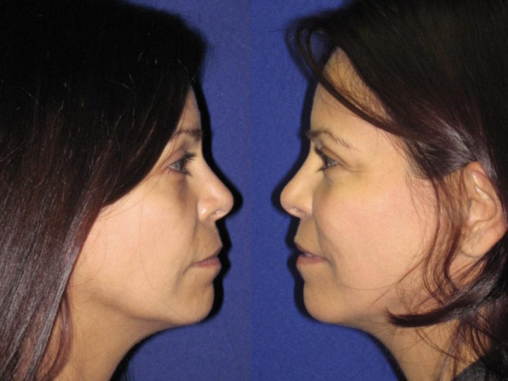 antes y después cirugía fat transfer