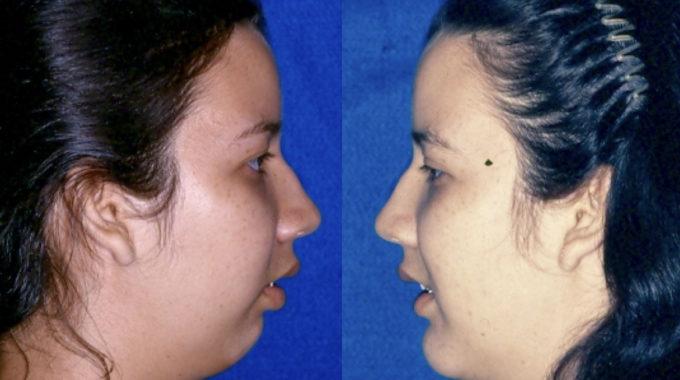 ejercicios para definir el ovalo facial