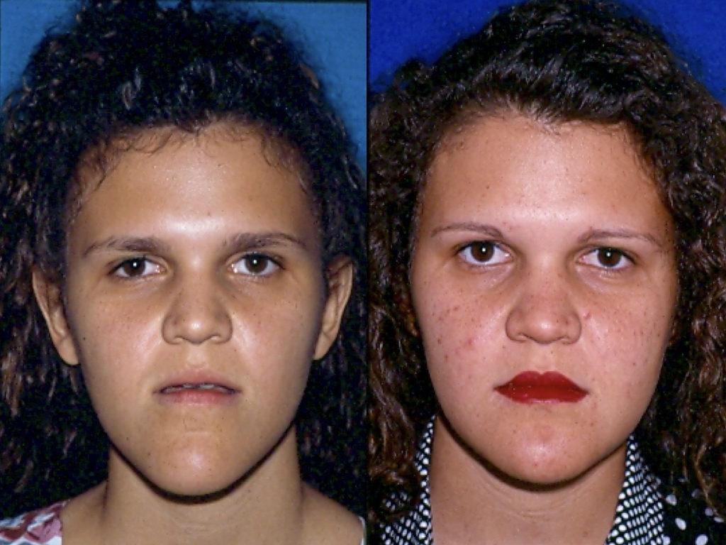 antes y después mentoplastia
