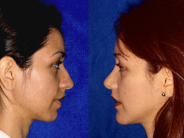 antes y después cirugía de nariz rinoplastia