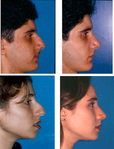 rinoplastia1