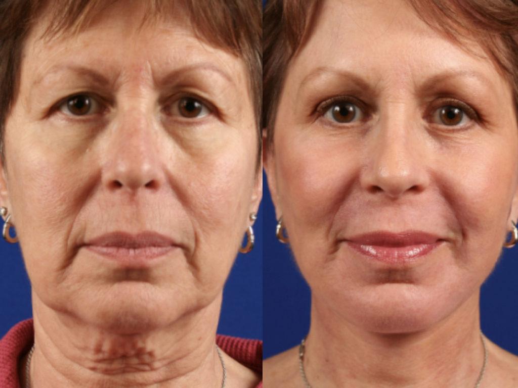 antes y después cirugía facial prótesis facial