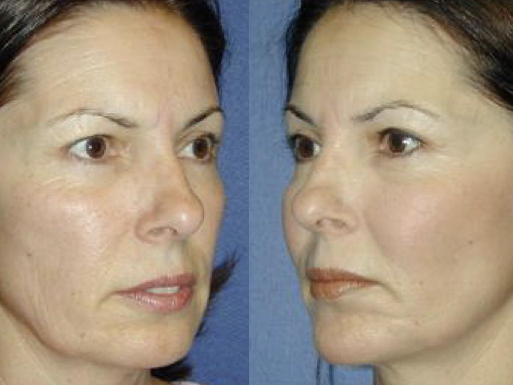 resultado prótesis facial