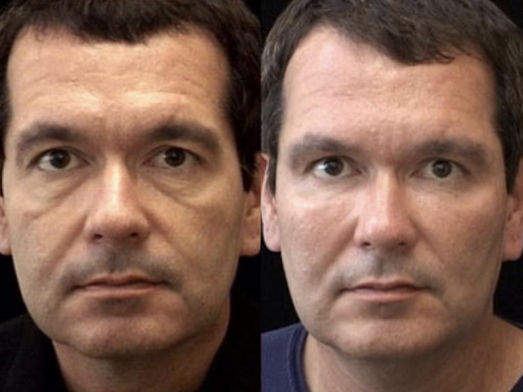 antes y después prótesis faciales